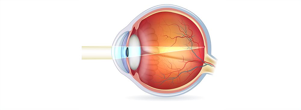 Расстояние Фокальное Глаза